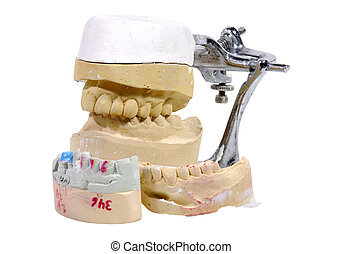 Dental Mold - Photo of Plaster Dental Mold / Impression -...