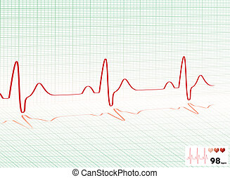 heart beat green grid - Illustrated heartbeat monitor with a...