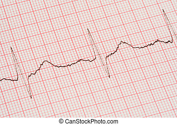 ECG printout - real close-up of ECG printout, no copyright...