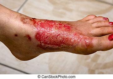 queimadura, pés