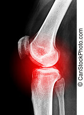 X-ray of a sore knee