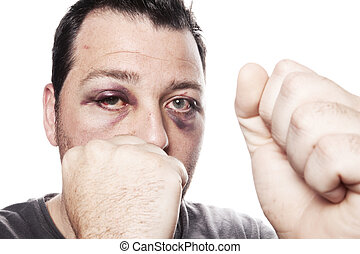 black eye injury boxer violence isolated - eye injury, male...