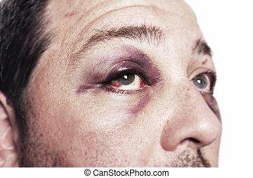 pretas, olho, ferimento, acidente, violência, isolado