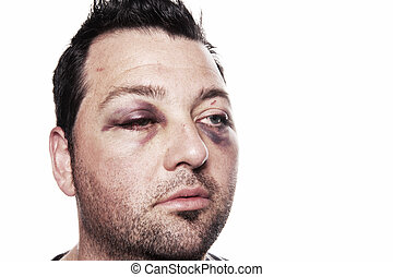 black eye injury accident violence isolated