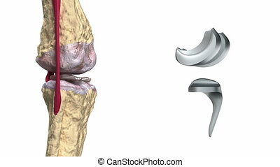 Knee and titanium hinge joint process