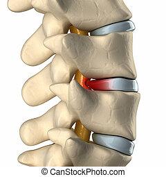 espinal, cuerda, debajo, presión, abultado, disco