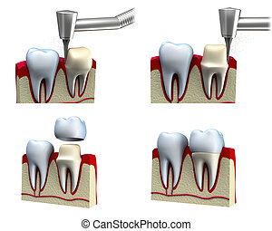 Dental crown installation process, isolated on white