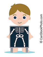 X, rayo, huesos, niño