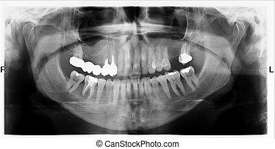 Teeth on X-Ray Image