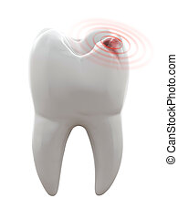 Toothache - 3D illustration of tooth with cavity - Toothache
