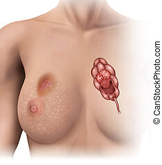 breast cancer - shifts in women's breast lobules