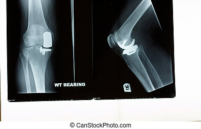 An x-ray of a knee replacement two different angles