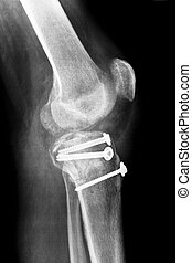 Osteosynthesis of a human knee - Osteosynthesis of a right...