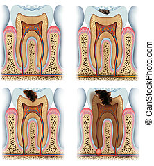 stages of tooth caries - Process evolution and decay of a...