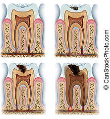 etapas, diente, caries