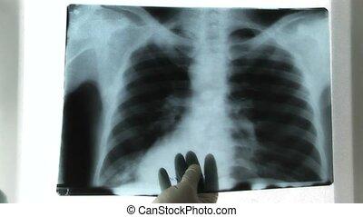 X-ray Image,