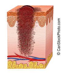 Metastasis - evolution of a melanoma metastasis reaching the
