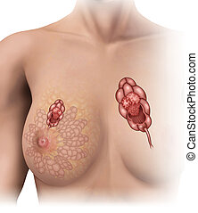 mammary tumor lobe - Image lobe affected by breast tumor