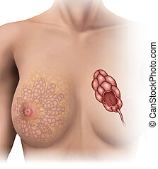 normal breast lobules - Image of the normal lobules of the...