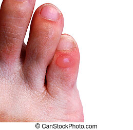 Blister on little toe of right foot