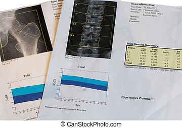 Osteoporosis diagnosis - Close-up photograph of DXA...