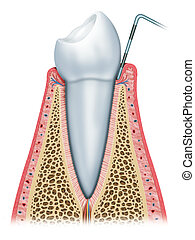 gingivitis principle - Gingivitis in the beginning with...