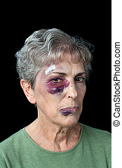 Beaten elderly woman - An elderly woman beaten and bruised...