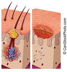 pathogenic bacteria - image of the skin affected by fungal...