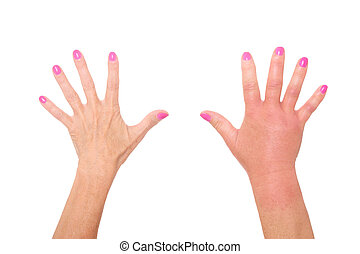 Wasp sting - A picture of female hands one swollen because...