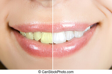 whitening - woman teeth before and after whitening