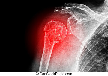 Sore shoulder - X-ray of a sore shoulder