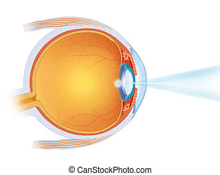 laser treatment on the eye - images of laser treatment on...