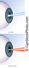 Laser - surgery with laser in the eye