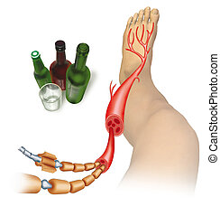 neuropathy - image of a person in the leg ailment because of...