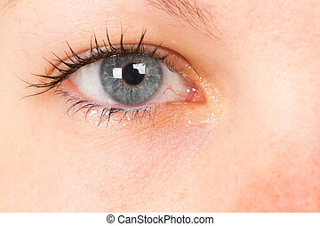 Women eye, close-up, blue, tear - Women eye, close-up, blue,...
