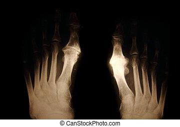 foots, radiografía