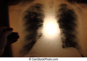 x-ray of lungs as nice medical background