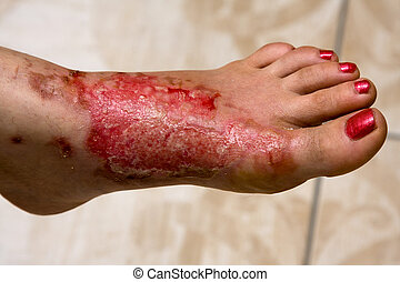 Burn feet - Severe burns in the women's leg .