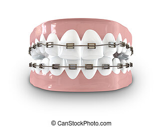 Teeth Fitted With Braces - A closed set of human teeth with...