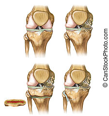 knee deflection - Surgical treatment of the correction of...