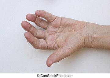 Closeup of hand with arthritis - Closeup of senior hand with...