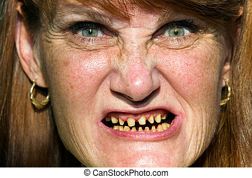 Scary Face Bad Teeth - Mature woman whose teeth have be...