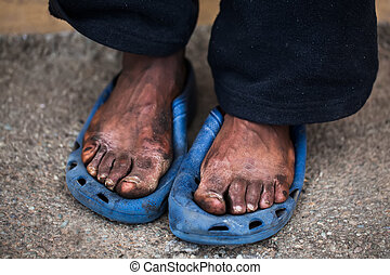 Pain - The feet of a old man who are in pain.