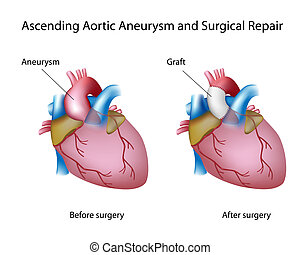 Ascending aortic aneurysm and open surgery, eps8