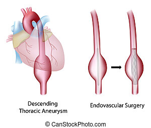 thoracic, Aórtico, aneurysm, cirurgia
