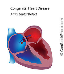 Atrial septal defect - Congenital heart disease: atrial...