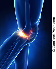 Painful knee concept