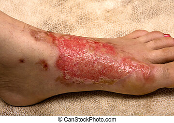 Severe burns in women