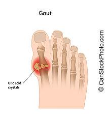 Gout, grande, dedo del pie, eps10