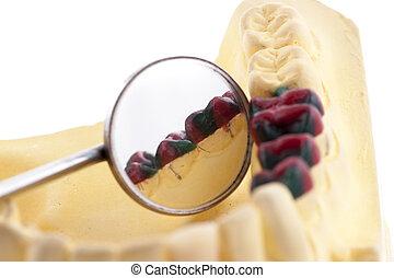 Denture cast model and dental tools